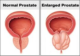 Prostate Surgery In Nashik