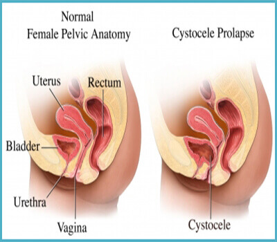 Female Urologist in Nashik