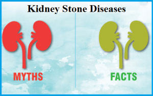 Kidney stone treatment in Nashik